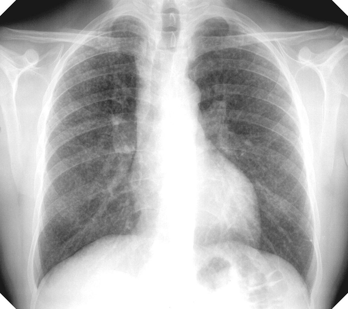 An x-ray of lungs.
