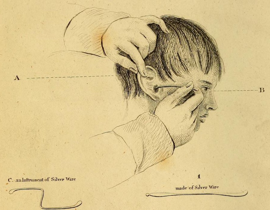 Illustration from William Wright's ((1773–1860)) book, An Essay on the Human Ear, published London, in 1817