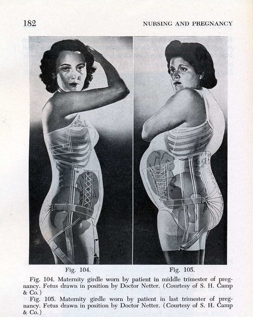 Diagram of maternity girdles, with x-ray filters showing the inside of each woman's body.